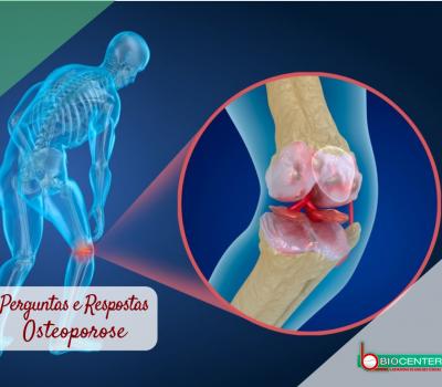 Osteoporose: Perguntas e respostas! (Dicas de Saúde - Laboratório Biocenter)